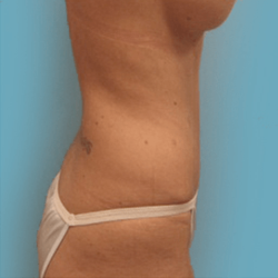 Manhattan abdominoplasty after 2